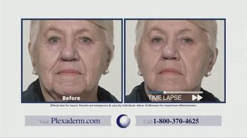 Plexaderm Skincare TV Spot, 'Face Lift in a Jar: 50 Percent Off and Free Shipping' - Thumbnail 3