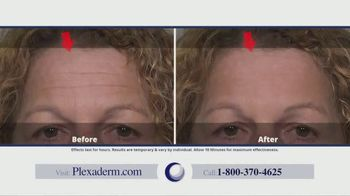 Plexaderm Skincare TV Spot, 'Face Lift in a Jar: 50 Percent Off and Free Shipping' - Thumbnail 9