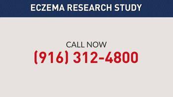 Eli Lilly TV Spot, 'Eczema Research Study' - Thumbnail 10