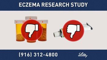 Eczema Research Study thumbnail