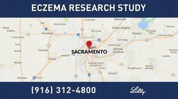 Eli Lilly TV Spot, 'Eczema Research Study' - Thumbnail 5