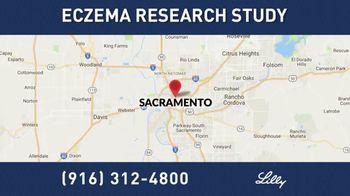 Eli Lilly TV Spot, 'Eczema Research Study' - Thumbnail 6