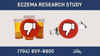 Eczema Research Study: Charlotte thumbnail