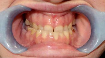 G4 by Golpa TV Spot, 'Severe Dental Issues' - Thumbnail 1