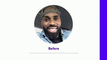 Smile Direct Club TV Spot, 'Choose Smile: Transformation'
