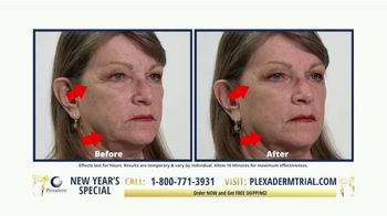 Plexaderm Skincare New Year's Special TV Spot, 'Confidence: $14.95 Trial' - Thumbnail 3