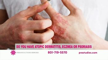 PRA Health Sciences TV Spot, 'Atopic Dermatitis, Eczema or Psoriasis' - Thumbnail 3