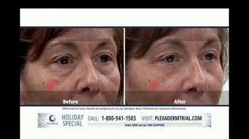 Plexaderm Skincare Holiday Special TV Spot, 'CEO: $14.95' - Thumbnail 6