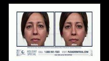 Plexaderm Skincare Holiday Special TV Spot, 'CEO: $14.95' - Thumbnail 7
