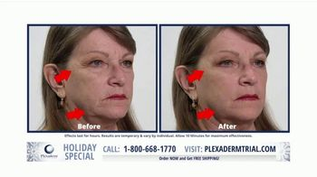 Plexaderm Skincare Holiday Special TV Spot, 'Confidence in a Bottle'