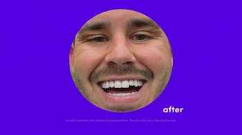 Smile Direct Club TV Spot, 'Choose Smile: Up to 60% Less Than Braces' - Thumbnail 8