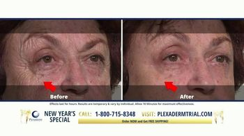 Plexaderm Skincare New Year's Special TV Spot, 'CEO: $14.95 Trial' - Thumbnail 2