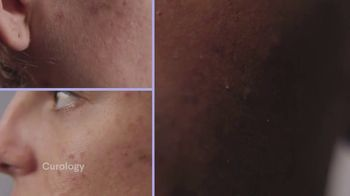 Curology TV Spot, 'No Two Are Exactly Alike' - Thumbnail 3