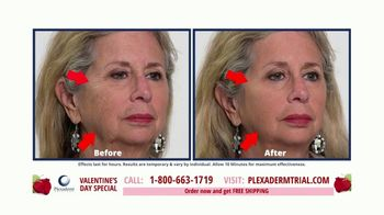 Plexaderm Skincare  Valentine's Day Special TV Spot, 'Social Media: $14.95' - Thumbnail 4