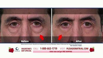 Plexaderm Skincare  Valentine's Day Special TV Spot, 'Social Media: $14.95' - Thumbnail 6