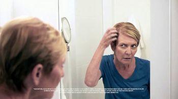 Winter Sale: Treat Hair Loss at Home thumbnail