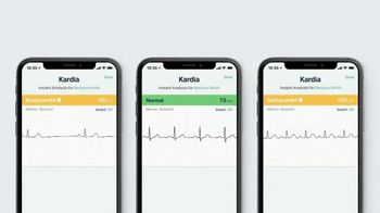 AliveCor Holiday Offer TV Spot, 'Check In On Your Heart' - Thumbnail 7