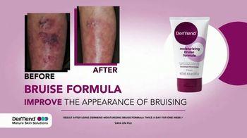 DerMend Moisturizing Bruise Formula TV Spot, 'More Bruising' - Thumbnail 4
