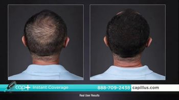 Capillus Cap+ Volumizing Keratin Brush TV Spot, 'Hide Thinning Hair: Men: $35 Off' - Thumbnail 5