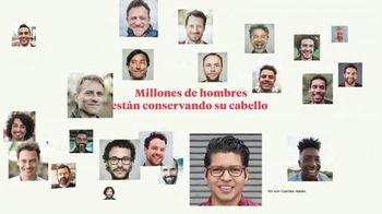 Keeps TV Spot, 'Millones de hombres' [Spanish]