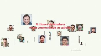 Keeps TV Spot, 'Millones de hombres' [Spanish] - Thumbnail 1