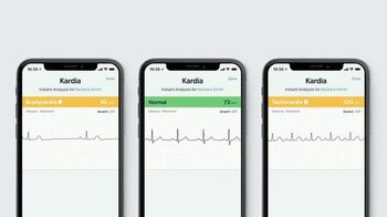 AliveCor KardiaMobile TV Spot, 'Check Your Heart From Home' - Thumbnail 7