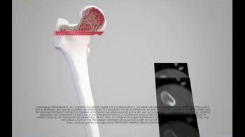 Monogram Orthopedics TV Spot, 'Made Of'