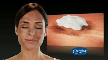 Dermisa Skin Fade Cream TV Spot, 'Aclara' [Spanish] - Thumbnail 4