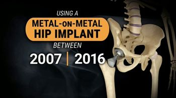 Gold Shield Group TV Spot, 'Hip Replacement Claim' - Thumbnail 2