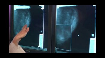 MammographySavesLives TV Spot, 'Dr. Stacy Keen' - Thumbnail 2