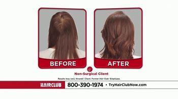 Hair Club TV Spot, 'Hair Loss Doesn't Discriminate' - Thumbnail 10