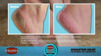 O'Keeffe's Healthy Feet TV Spot, 'Guaranteed Relief for Dry, Cracked Feet' - Thumbnail 7