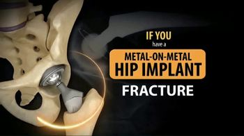 Gold Shield Group TV Spot, 'Metal on Metal Hip Implant' - Thumbnail 1