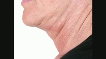 Perricone MD Cold Plasma Sub-D TV Spot, 'Visibly Firmer Neck' - Thumbnail 3