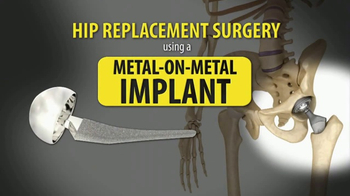Gold Shield Group TV Spot, 'Metal on Metal Hip Replacement' - Thumbnail 2