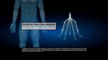 Los Defensores TV Spot, 'Filtro de vena cava inferior' [Spanish] - Thumbnail 2