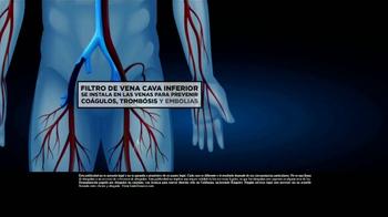 Los Defensores TV Spot, 'Filtro de vena cava inferior' [Spanish]