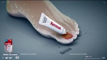 Kerasal Fungal Nail Renewal TV Spot, 'The Difference' - Thumbnail 5