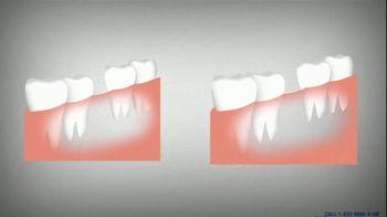 Mini Dental Implant Centers of America TV Spot, 'Your Best Asset' - Thumbnail 2