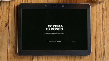 Sanofi Genzyme & Regeneron TV Spot, 'Eczema Exposed' - Thumbnail 10