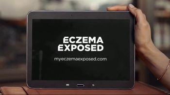 Sanofi Genzyme & Regeneron TV Spot, 'Eczema Exposed' - Thumbnail 7