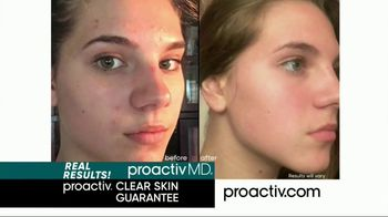 Proactiv Pore Cleansing Brush TV Spot, 'Deep Clean' - Thumbnail 9