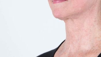 Perricone MD Cold Plasma Sub-D TV Spot, 'Visibly Firmer Neck: $59.95' - Thumbnail 3
