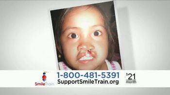 Smile Train TV Spot, 'Xana' - Thumbnail 7