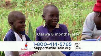 Smile Train TV Spot, 'Osawa' - Thumbnail 7