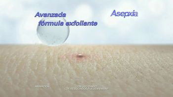 Asepxia TV Spot, 'Irresistible' [Spanish] - Thumbnail 6