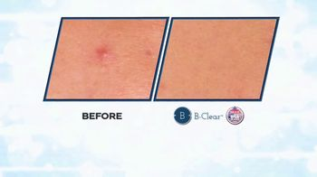 B-Clear TV Spot, 'Quick Fix' - Thumbnail 6