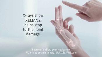 Xeljanz XR TV Spot, 'Cactus' - Thumbnail 4