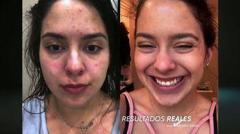 ProactivMD TV Spot, 'Gran avance contra el acné: duo para el spa' [Spanish] - Thumbnail 2