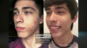ProactivMD TV Spot, 'Gran avance contra el acné: duo para el spa' [Spanish] - Thumbnail 9